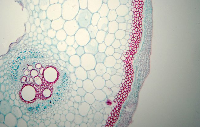 Microscopic photography